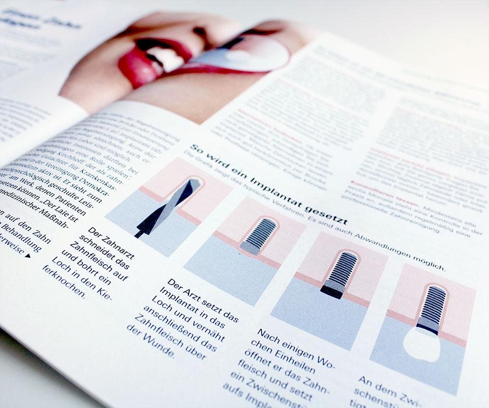Stiftung Warentest – Layout & Infografiken Zahnimplantate